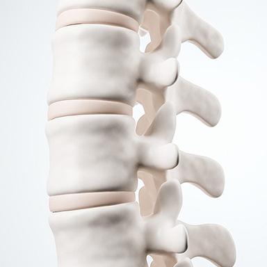 Orthopäde Wirbelsäule